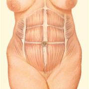 Tummy Tuck, Pre-Interior Incision