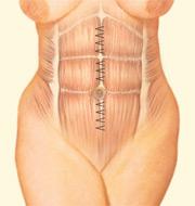 Tummy Tuck, Interior Incision