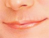 Nasolabial Folds, Before