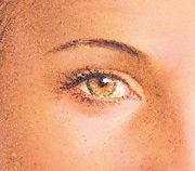 Eyelid Surgery, Final