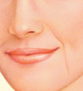 Lip Augmentation, Before
