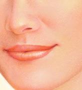 Lip Augmentation, After