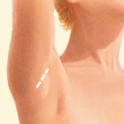Transaxillary Incision
