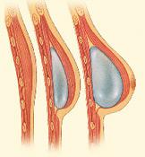 Insert Breast Implants