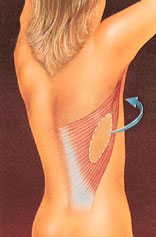 breast_reconstruction-4