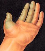 hand_surgery-1