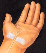 hand_surgery-4