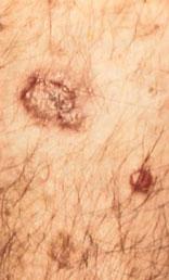skin_cancer-2